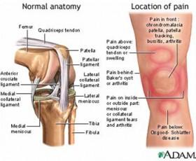 Knee Injuries: Jumpers Knee